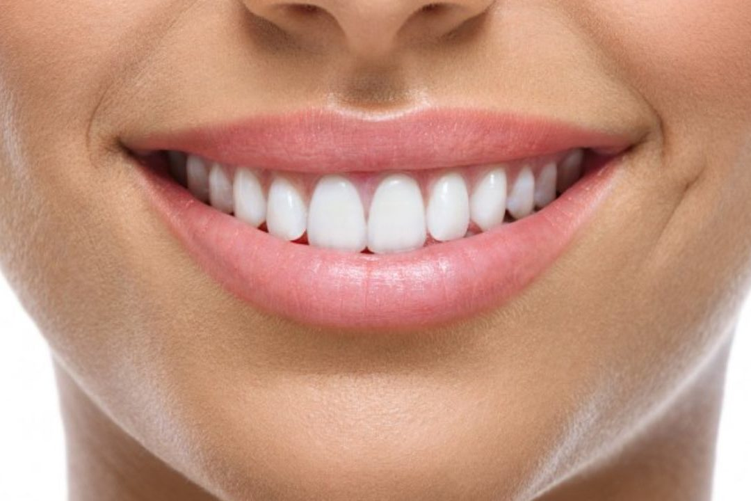cropped CosmeticToothBonding